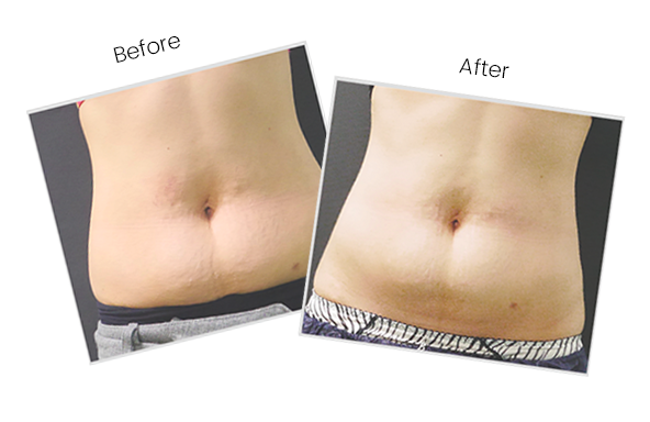 Before and After Clatuu Fat Removal